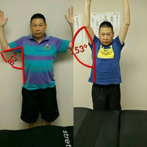 When Wayne was referred to me he had limited shoulder mobility and was experienced joint pain. His pain is now gone and his mobility has almost doubled!